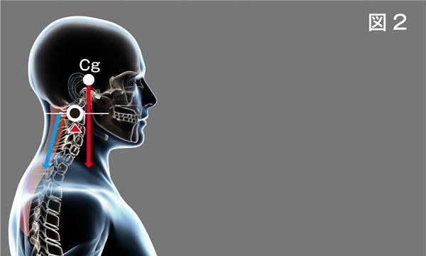 頸椎ヘルニア治療についてのご案内