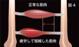 頸椎ヘルニア治療について説明画像4