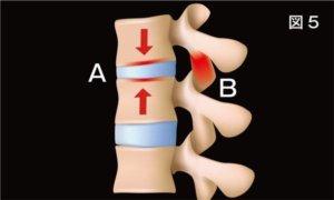頸椎ヘルニア治療について説明画像5