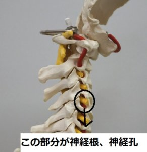 神経孔写真
