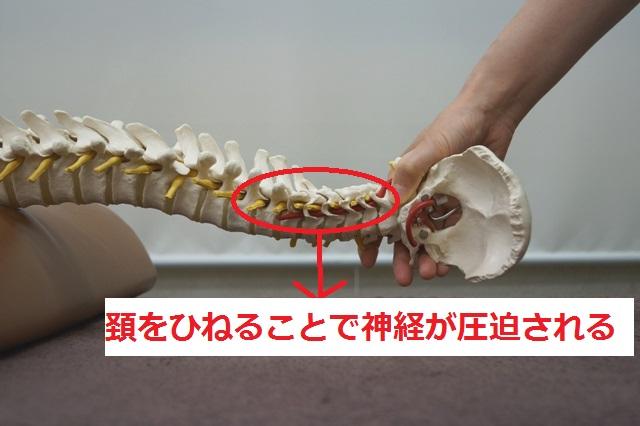 ストレッチ 頸椎 ヘルニア