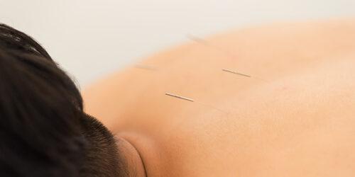 その他の鍼灸治療